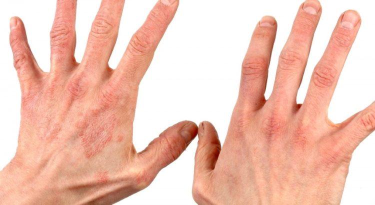 Псориаз – хроническое кожное заболевание.